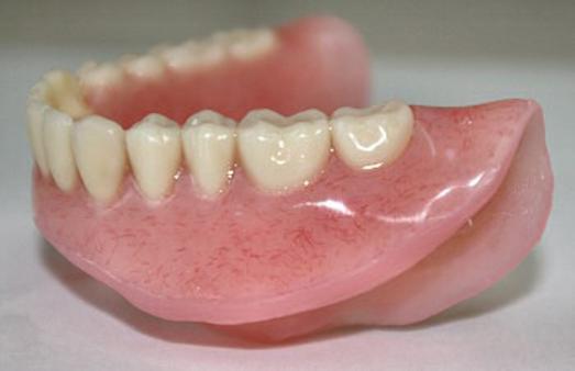 soft liner dentures
