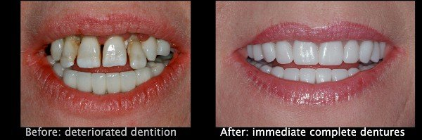 immediate dentures ottawa