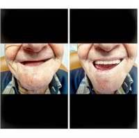 denture ottawa