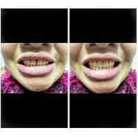 Ottawa denture patient