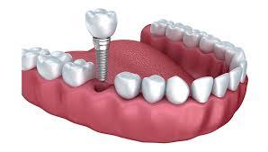 dental implants ottawa